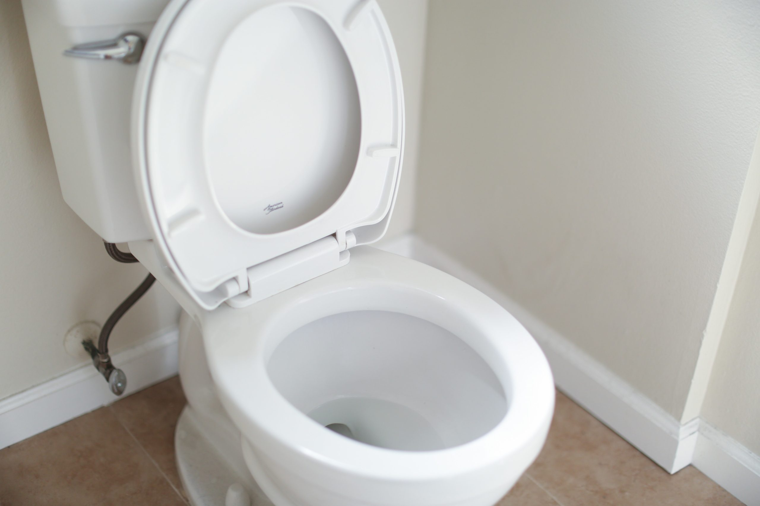 Toilet Repair | Chino Hills, CA